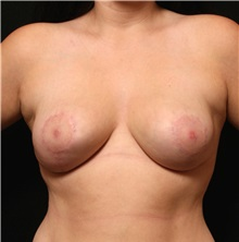 Breast Reduction After Photo by George Toledo, MD; Dallas, TX - Case 34880
