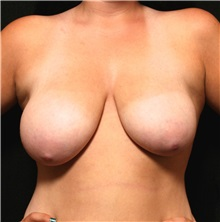 Breast Reduction Before Photo by George Toledo, MD; Dallas, TX - Case 34880