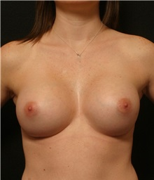 Breast Augmentation After Photo by George Toledo, MD; Dallas, TX - Case 34886