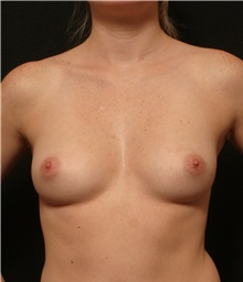 Breast Augmentation Before Photo by George Toledo, MD; Dallas, TX - Case 34886