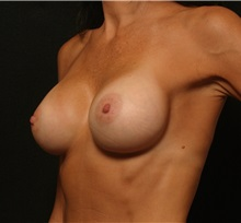 Breast Augmentation After Photo by George Toledo, MD; Dallas, TX - Case 34887