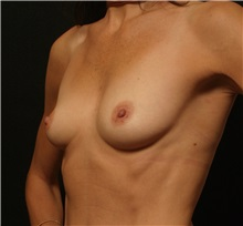 Breast Augmentation Before Photo by George Toledo, MD; Dallas, TX - Case 34887