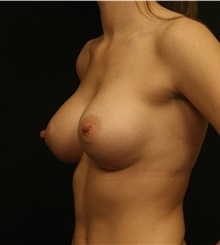Breast Augmentation After Photo by George Toledo, MD; Dallas, TX - Case 34892