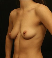 Breast Augmentation Before Photo by George Toledo, MD; Dallas, TX - Case 34892