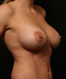 Breast Augmentation After Photo by George Toledo, MD; Dallas, TX - Case 34894