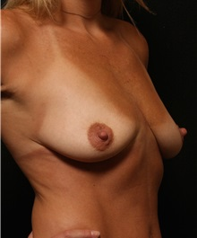Breast Augmentation Before Photo by George Toledo, MD; Dallas, TX - Case 34894