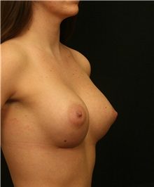 Breast Augmentation After Photo by George Toledo, MD; Dallas, TX - Case 34895