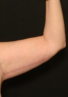 Arm Lift After Photo by George Toledo, MD; Dallas, TX - Case 34897