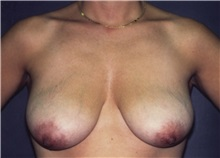 Breast Lift Before Photo by George Toledo, MD; Dallas, TX - Case 34898