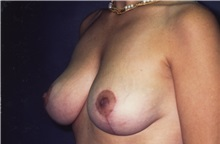 Breast Lift After Photo by George Toledo, MD; Dallas, TX - Case 34898