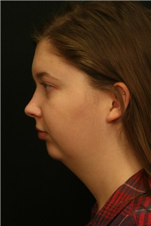 Chin Augmentation Before Photo by George Toledo, MD; Dallas, TX - Case 34901