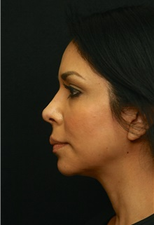 Chin Augmentation After Photo by George Toledo, MD; Dallas, TX - Case 34902
