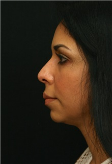 Chin Augmentation Before Photo by George Toledo, MD; Dallas, TX - Case 34902
