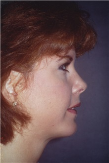Chin Augmentation After Photo by George Toledo, MD; Dallas, TX - Case 34903