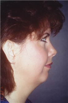 Chin Augmentation Before Photo by George Toledo, MD; Dallas, TX - Case 34903