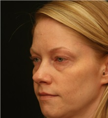 Eyelid Surgery Before Photo by George Toledo, MD; Dallas, TX - Case 34922