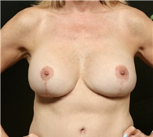 Breast Implant Revision After Photo by George Toledo, MD; Dallas, TX - Case 41052
