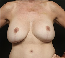 Breast Implant Revision Before Photo by George Toledo, MD; Dallas, TX - Case 41052