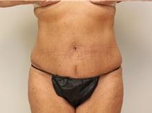 Tummy Tuck After Photo by John Menard, MD; Tuscaloosa, AL - Case 35863