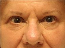 Eyelid Surgery After Photo by John Menard, MD; Tuscaloosa, AL - Case 36860