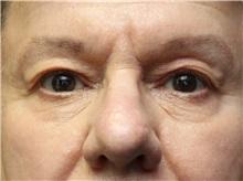 Eyelid Surgery Before Photo by John Menard, MD; Tuscaloosa, AL - Case 36860