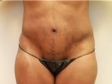 Body Contouring After Photo by John Menard, MD; Tuscaloosa, AL - Case 38391