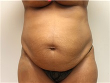 Body Contouring Before Photo by John Menard, MD; Tuscaloosa, AL - Case 38391
