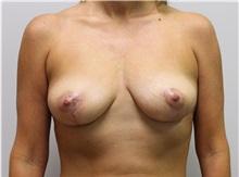 Breast Lift After Photo by John Menard, MD; Tuscaloosa, AL - Case 38405
