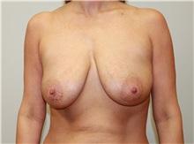 Breast Lift Before Photo by John Menard, MD; Tuscaloosa, AL - Case 38405