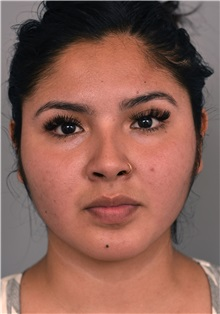 Cheek Reduction After Photo by Thomas Sterry, MD; New York, NY - Case 37063