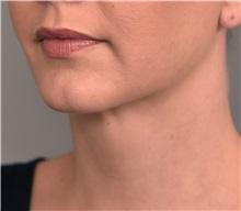 Cheek Reduction After Photo by Thomas Sterry, MD; New York, NY - Case 37064