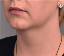 Cheek Reduction Before Photo by Thomas Sterry, MD; New York, NY - Case 37064