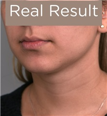 Cheek Reduction After Photo by Thomas Sterry, MD; New York, NY - Case 37065