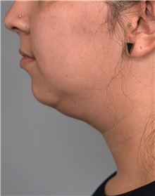 Cheek Reduction Before Photo by Thomas Sterry, MD; New York, NY - Case 37065