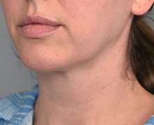 Cheek Reduction After Photo by Thomas Sterry, MD; New York, NY - Case 37066