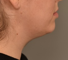 Cheek Reduction Before Photo by Thomas Sterry, MD; New York, NY - Case 37066