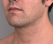 Cheek Reduction After Photo by Thomas Sterry, MD; New York, NY - Case 37067