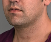 Cheek Reduction Before Photo by Thomas Sterry, MD; New York, NY - Case 37067