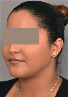 Cheek Reduction After Photo by Thomas Sterry, MD; New York, NY - Case 37068