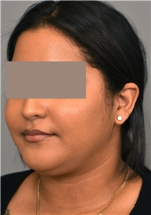 Cheek Reduction Before Photo by Thomas Sterry, MD; New York, NY - Case 37068