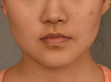 Cheek Reduction After Photo by Thomas Sterry, MD; New York, NY - Case 37069