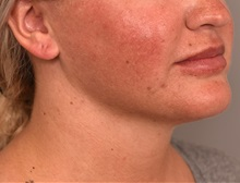 Cheek Reduction After Photo by Thomas Sterry, MD; New York, NY - Case 37070