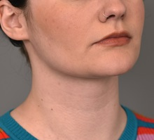 Cheek Reduction After Photo by Thomas Sterry, MD; New York, NY - Case 37071