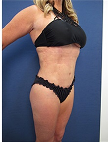 Liposuction After Photo by Arian Mowlavi, MD; Laguna Beach, CA - Case 34050