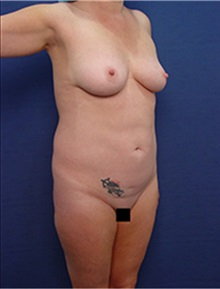 Liposuction Before Photo by Arian Mowlavi, MD; Laguna Beach, CA - Case 34050