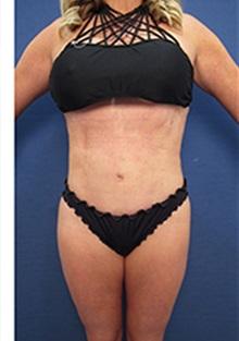 Liposuction After Photo by Arian Mowlavi, MD; Laguna Beach, CA - Case 34050