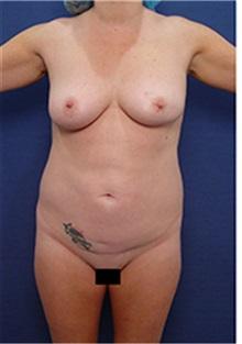 Liposuction Before Photo by Arian Mowlavi, MD; Laguna Beach, CA - Case 34050