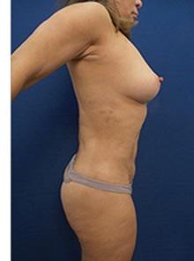 Liposuction After Photo by Arian Mowlavi, MD; Laguna Beach, CA - Case 34056