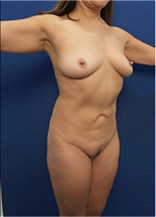 Liposuction Before Photo by Arian Mowlavi, MD; Laguna Beach, CA - Case 34056