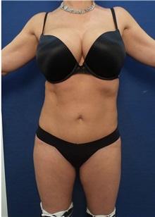 Liposuction After Photo by Arian Mowlavi, MD; Laguna Beach, CA - Case 34322